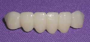 Porcelain Fixed Dental Bridges By Dr David Richardson