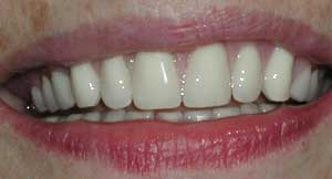 Dentures by Dr. David Richardson - Charleston SC Dentist